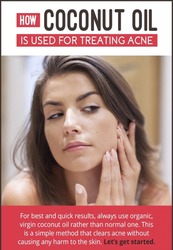 How-to-Cure-Acne-using-Coconut-Oil-2-672x1024.
