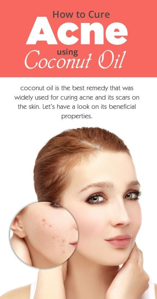 How-to-Cure-Acne-using-Coconut-Oil-507x10241.